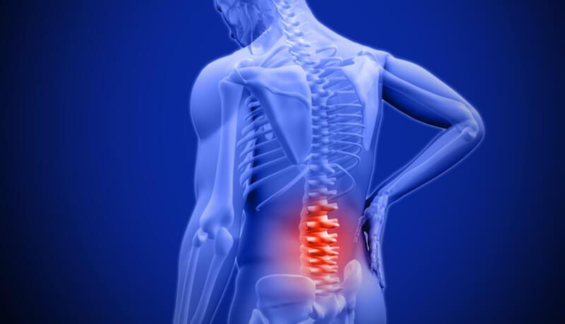 back pain Pakistan